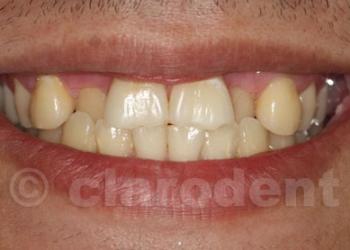 Ortodontie 10