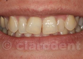 Ortodontie 2