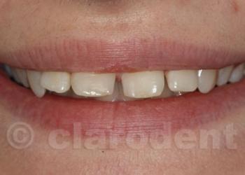 Ortodontie 3