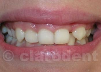 Ortodontie 6