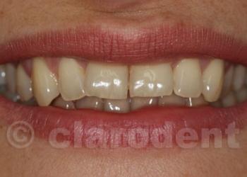 Ortodontie 8