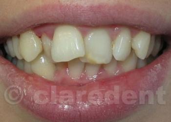 Ortodontie 9