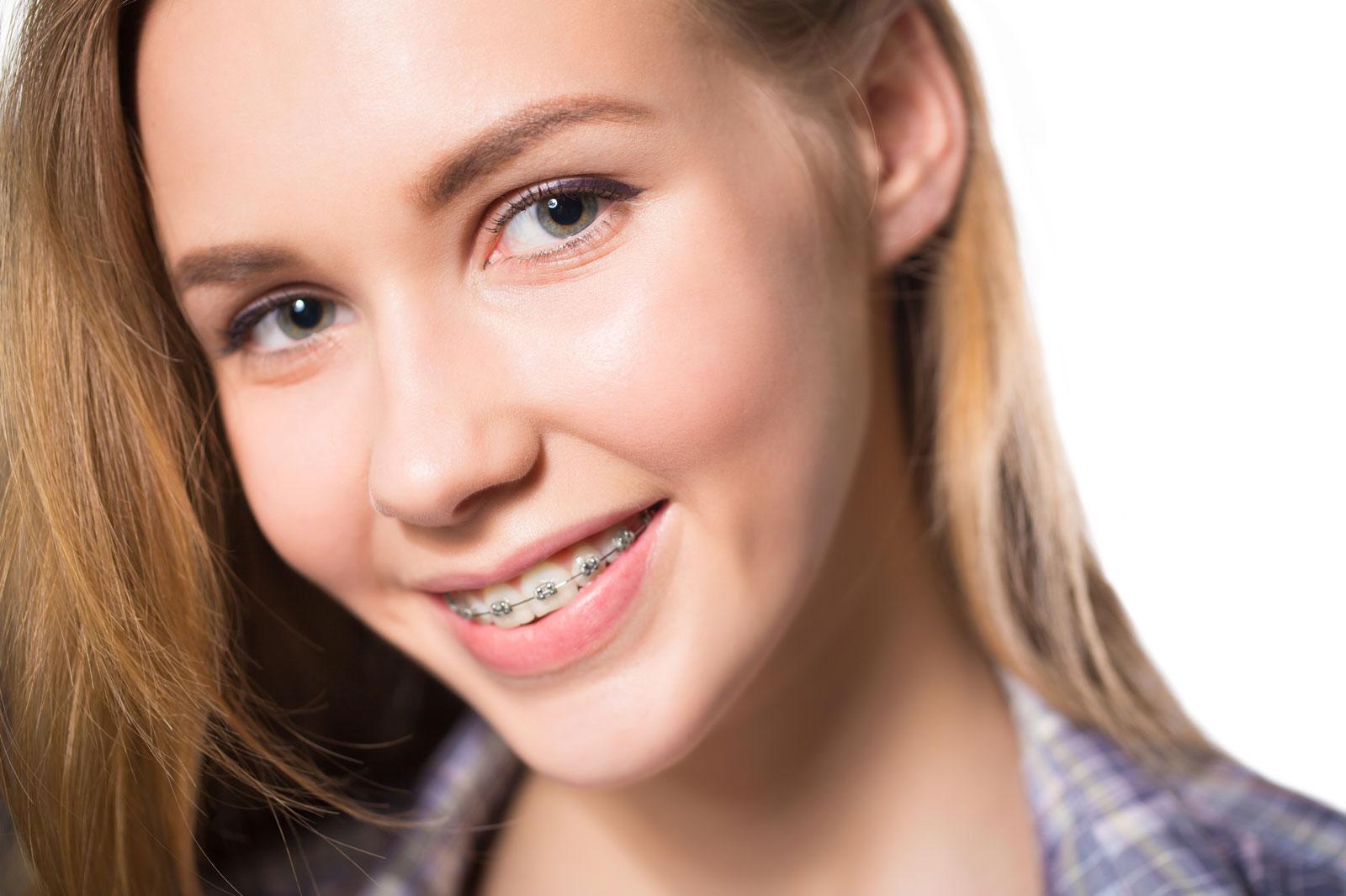 aparat dentar adolescenti